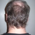 photo showing back of a man's head